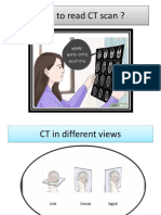 presentation How to Read CT Scan-1