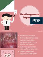 Dentinogeneza Imperfecta