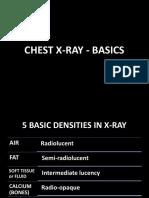 Chest X-ray Basics
