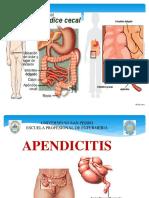 1. Apendicitis