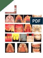 Orthodontic 2