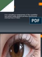 cataract (2).pptx
