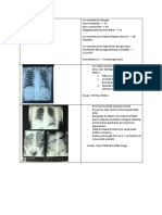 rontgen thorax.docx
