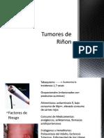 Tumores de Riñon.pptx