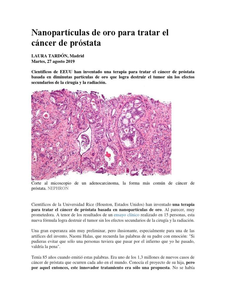 exención para cirugía de próstata