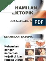 Kehamilan Ektopik