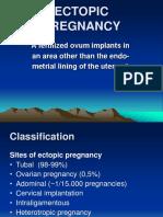 Ectopic pregnancy.ppt