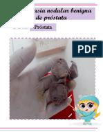 Hiperplasia Beninga de Prostata - Torres Dante