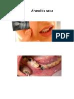 392730259 Alveolitis Seca