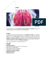 Edema Pulmonar.docx