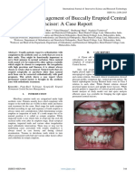 Orthodontic Management of Buccally Erupted Central  Incisor