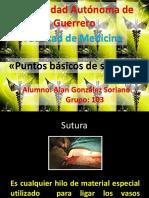 tecnicasdesuturasypuntos-120125230151-phpapp01