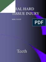 maxillofacialfractures.PPT