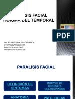 Parálisis facial, trauma del temporal
