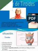 Xpo Cancer Tiroides ...Cx Cabeza y Cuello