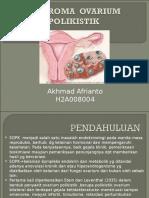 191414992-1-Referat-Sindrom-Ovarium-Polikistik.ppt