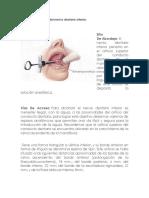 Anestesia Troncular Del Nervio Dentario Inferior
