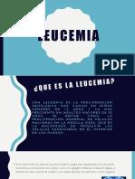 LEUCEMIAS-PRESENTACIÓN