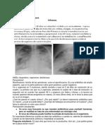 Clase 12. Influenza