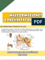 Malformaciones Congenitas de Oido