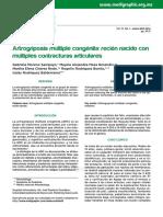 artrogriposis.pdf