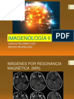 2. Neuroimagenes- Resonancia Magnética