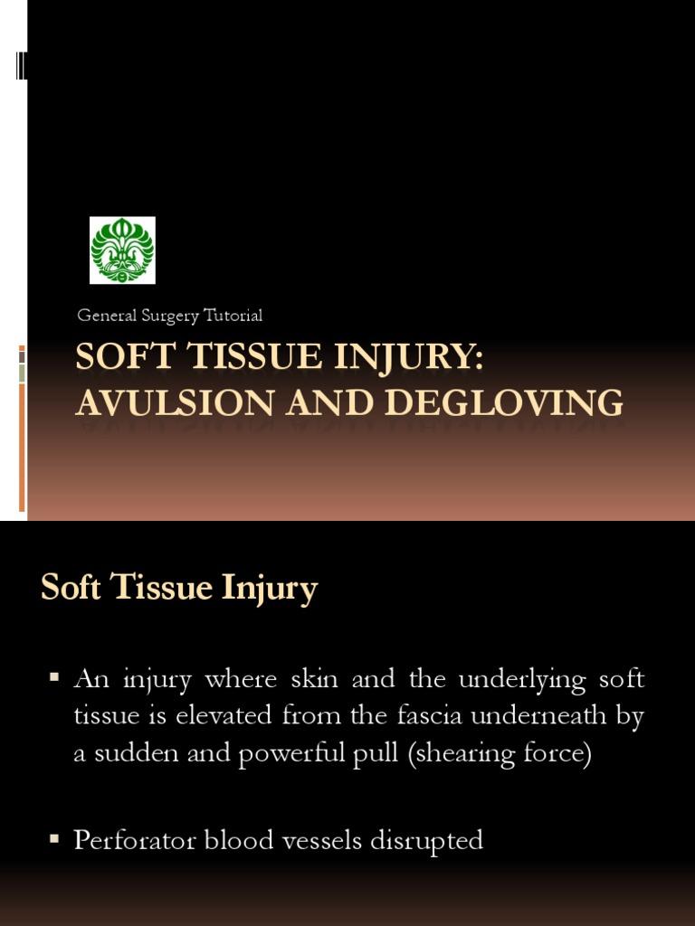 Avulsion And Degloving Injury Surgery Wound