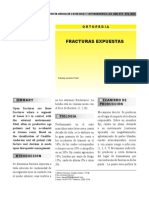 Fracturas 1