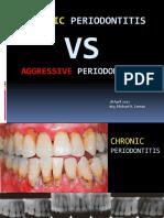 Chronic vs Aggressive Periodontitis