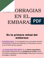 HEMORRAGIAS EN EL EMBARAZO.pptx