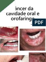 Câncer da cavidade oral