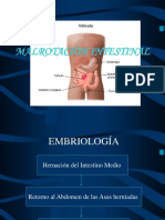 08 - Malrotacion Intestinal