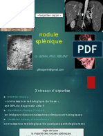 09-nodule splénique GERMAD.pdf