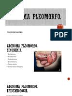 Adenoma Pleomorfo Nefertari