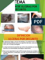 Ulceras Por Decubito