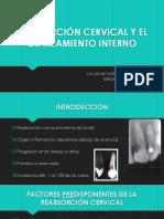 Reabsorción Cervical y El Clareamiento Interno
