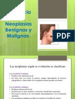 diferenciaentreneoplasiasbenignasymalignas-121126161101-phpapp01