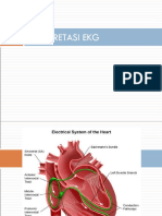 EKG Aritmia d3