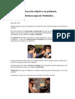 Retinoscopia de Mohindra