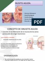 Sinusitis Final