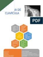 FRACTURA DE CLAVÍCULA Y ESCAPULA.pptx
