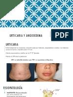 Urticaria y Angioedema Final