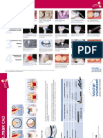 IPS+e-max+CAD+-+Step+by+Step+for+CEREC