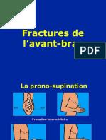 K- Avant -bras - Fractures.ppt