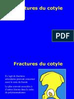 04- Fractures du cotyle.ppt