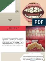 placabacteriana-170125003420