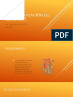 Revascularización Del Miocardio