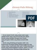 Corpus Alienum Pada Hidung.pptx