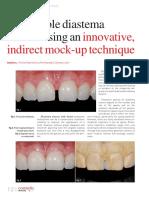 predictable-diastema-closure-using-an-innovative-indirect-mock-up-technique.pdf