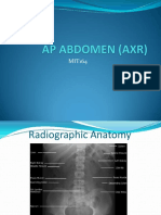 AP Abdomen (Axr)